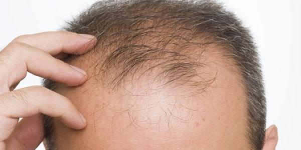 Co zrobić, żeby włosy nie wypadały