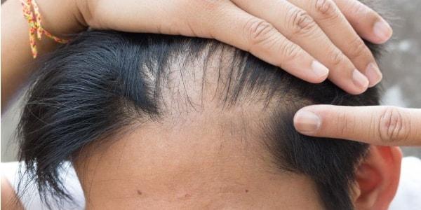 Wypadające włosy - przyczyny problemu